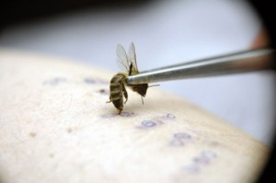 импотенция и пчелоужаление